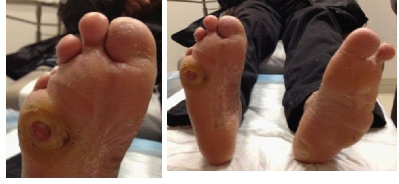 Diabetic Foot Ulcers Treatment And Prevention Intechopen