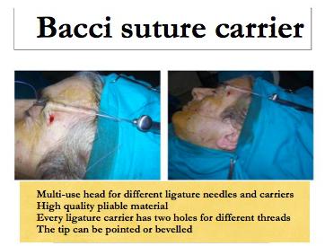 T3 - Soft Face Lift by Suspension Surgery   IntechOpen