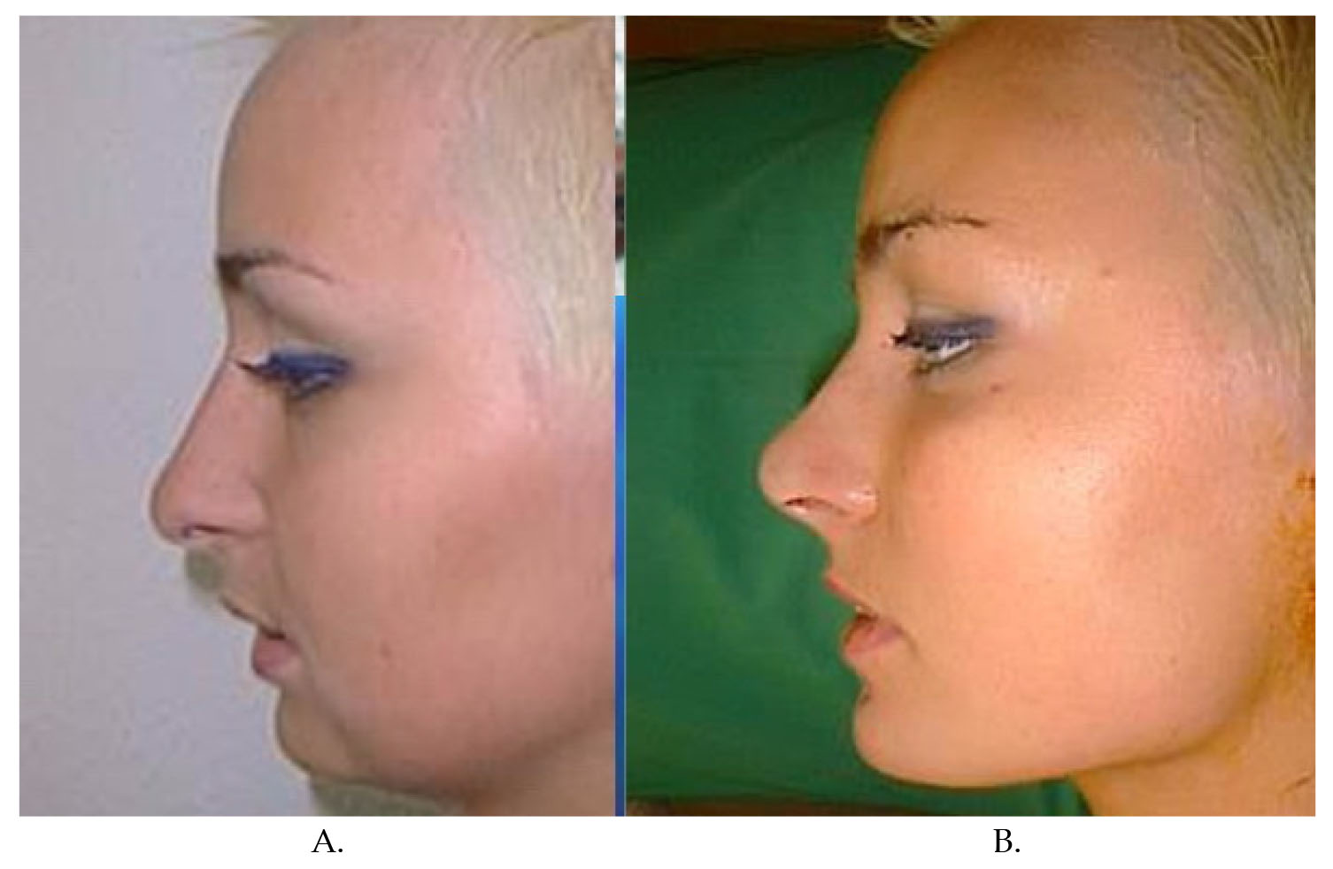 Serdev Sutures® in Lower Face and Neck   IntechOpen