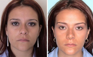 Serdev Sutures® in Upper Face: Brow and Temporal Lift ...