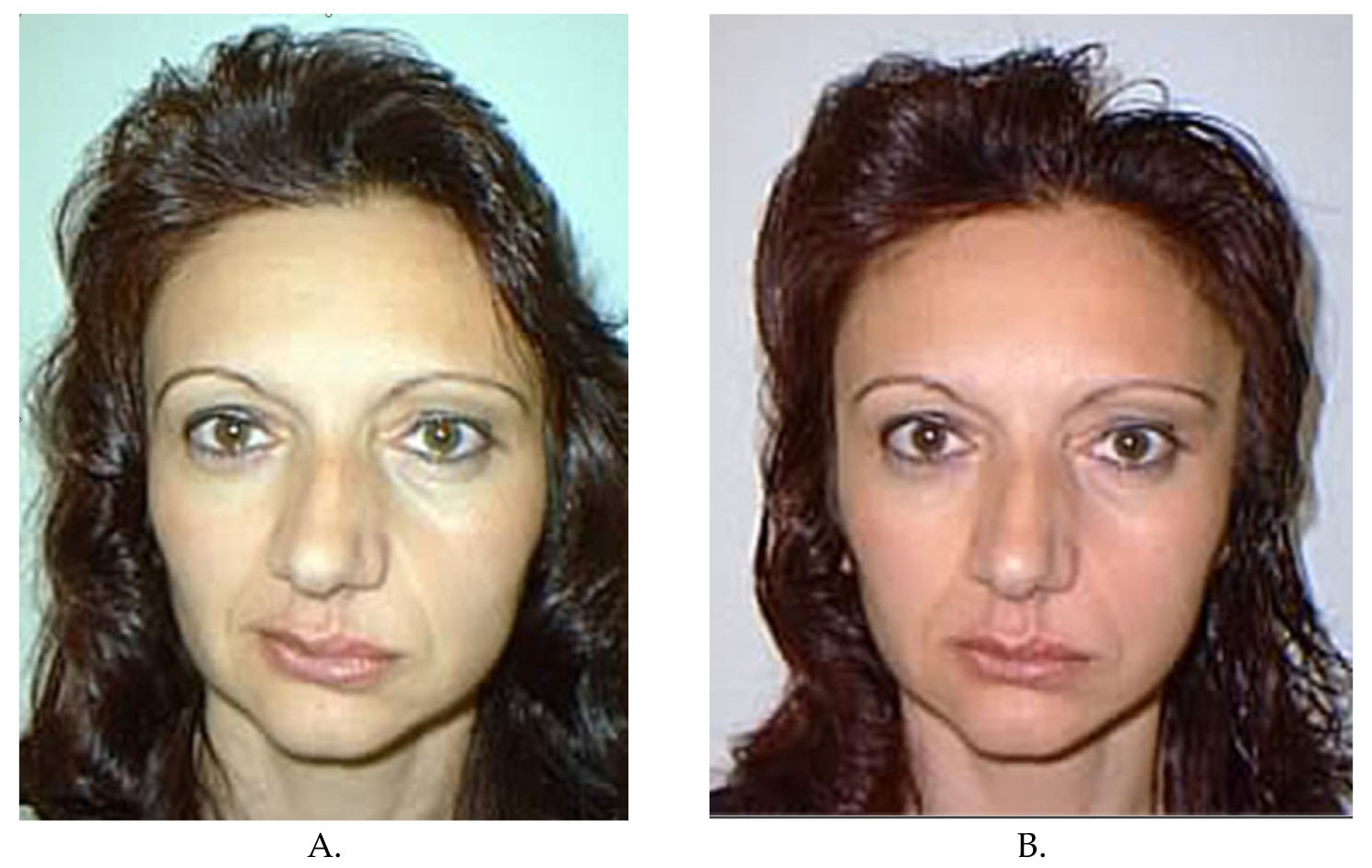Serdev Sutures® in Upper Face: Brow and Temporal Lift