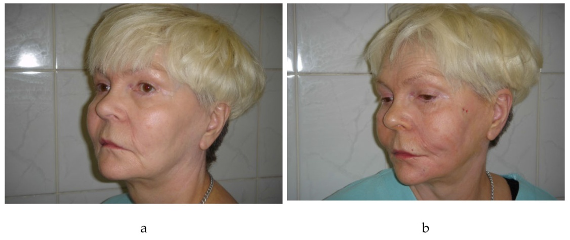 New Method of Face Elastic Thread Lift | IntechOpen
