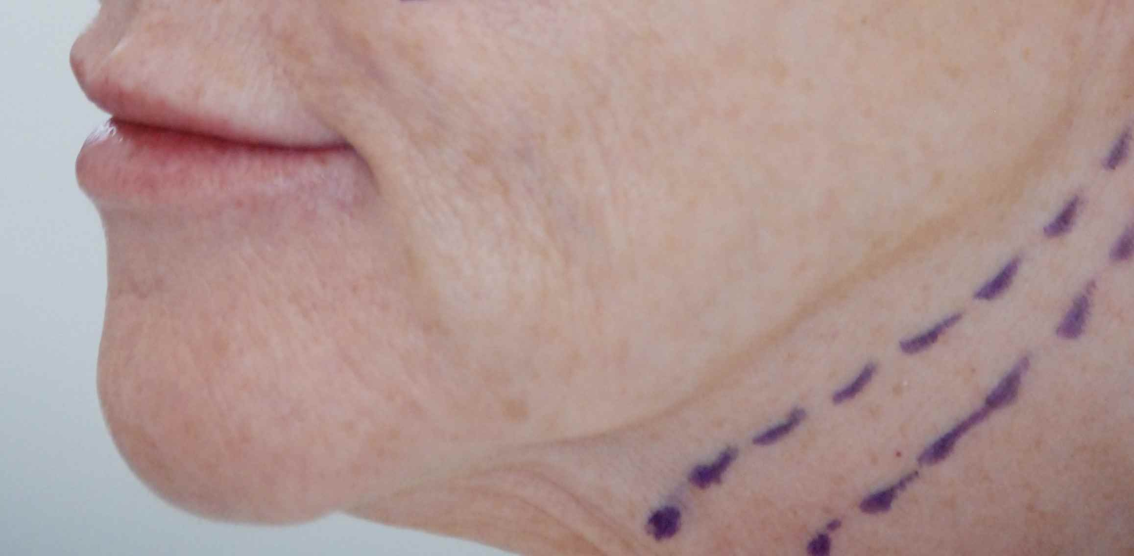 Minimally Invasive Face and Neck Lift Using Silhouette Coned Sutures