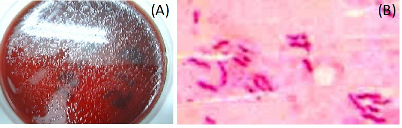 Functional Dyspepsia and Helicobacter pylori Infection