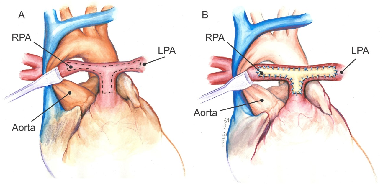 Surgical Repair Of Stenotic Pulmonary Arteries In Tetralogy Of