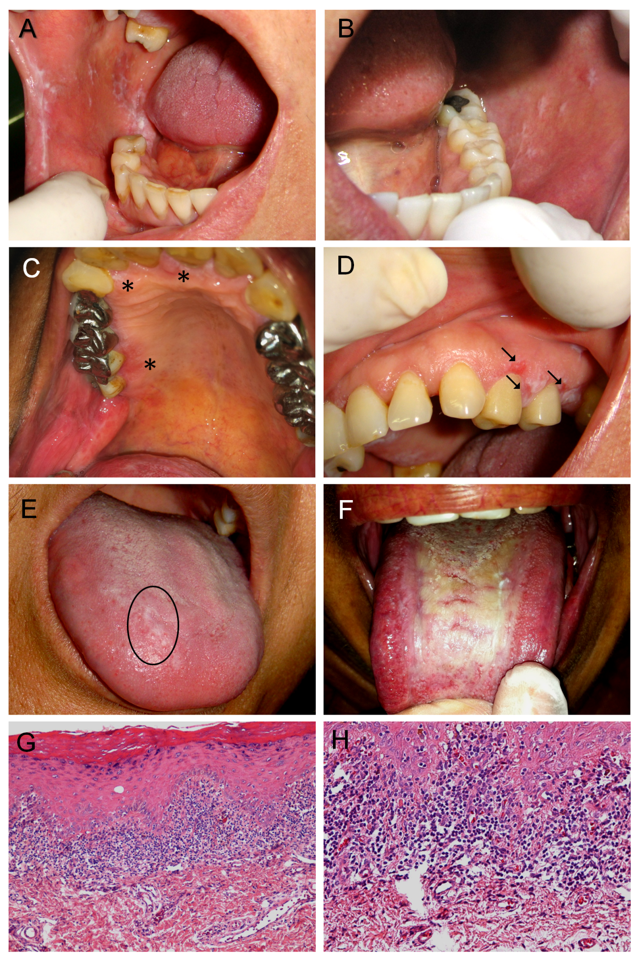 Oral Hpv Related Diseases A Review And An Update Intechopen