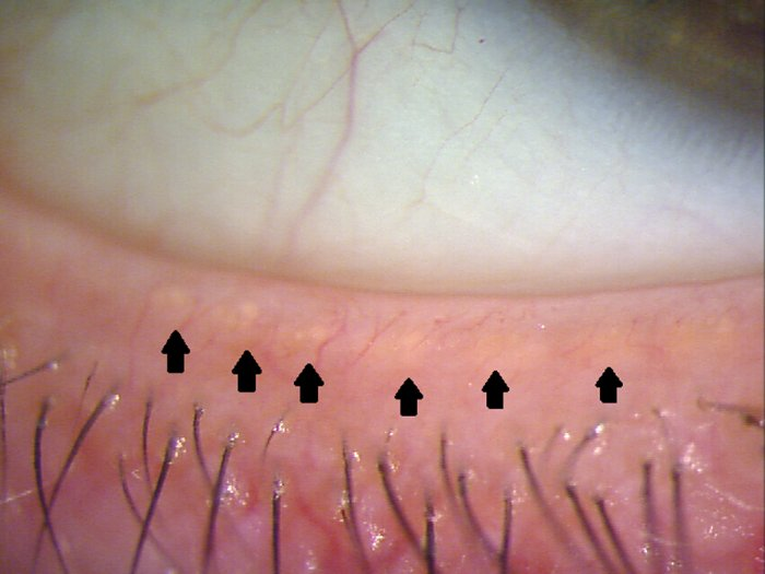 Dry Eye An Insight Into Meibomian Gland Dysfunction