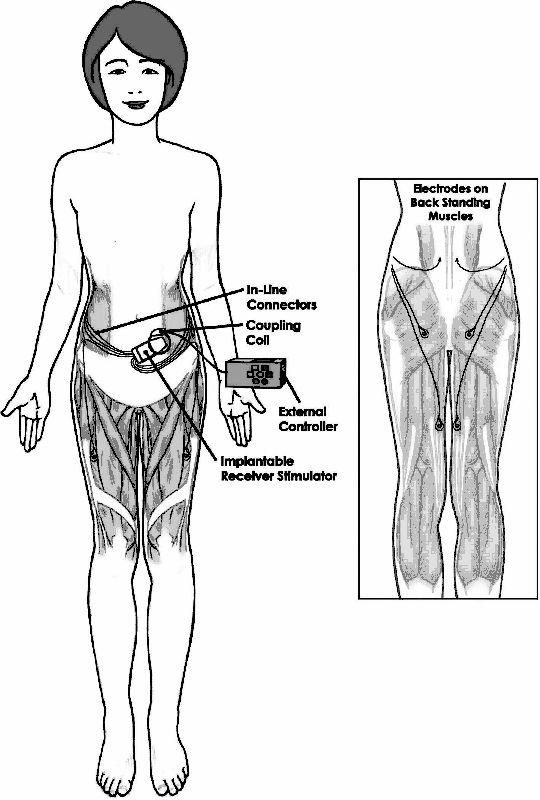 Functional Electrical Stimulation In Paraplegia Intechopen