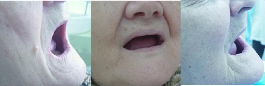Denture and Overdenture Complications   IntechOpen