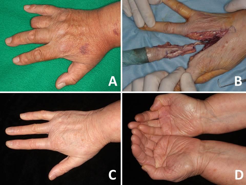 Current Surgical Management Of Acral Lentiginous Melanoma