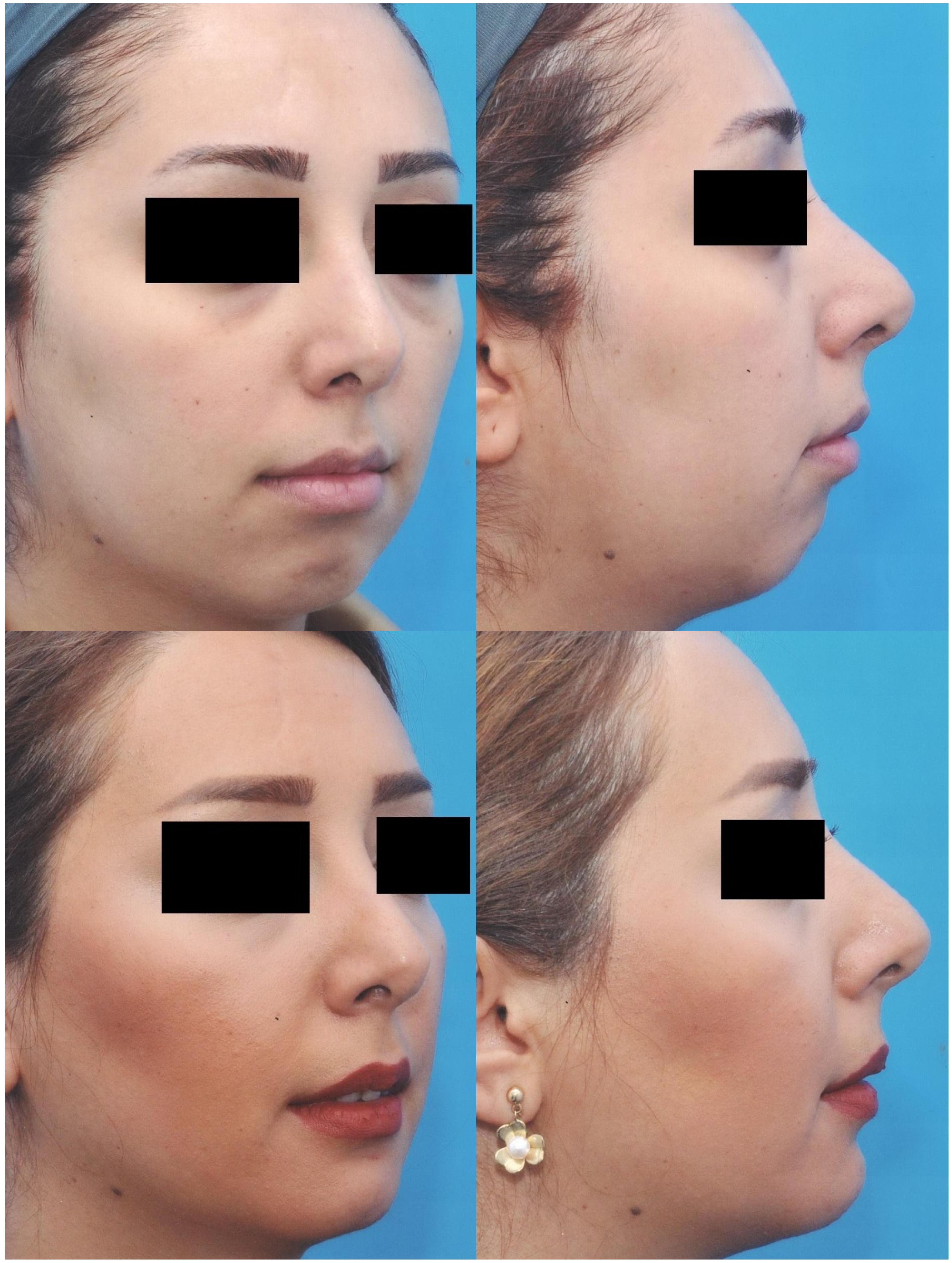 Facial Augmentation with Implants   IntechOpen