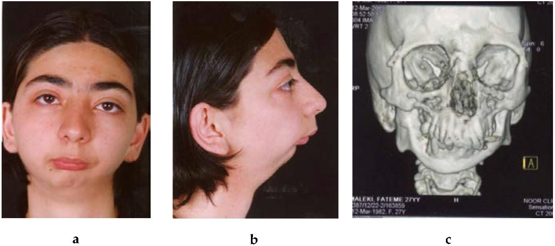 Comprehensive Management Of Temporomandibular Joint Ankylosis