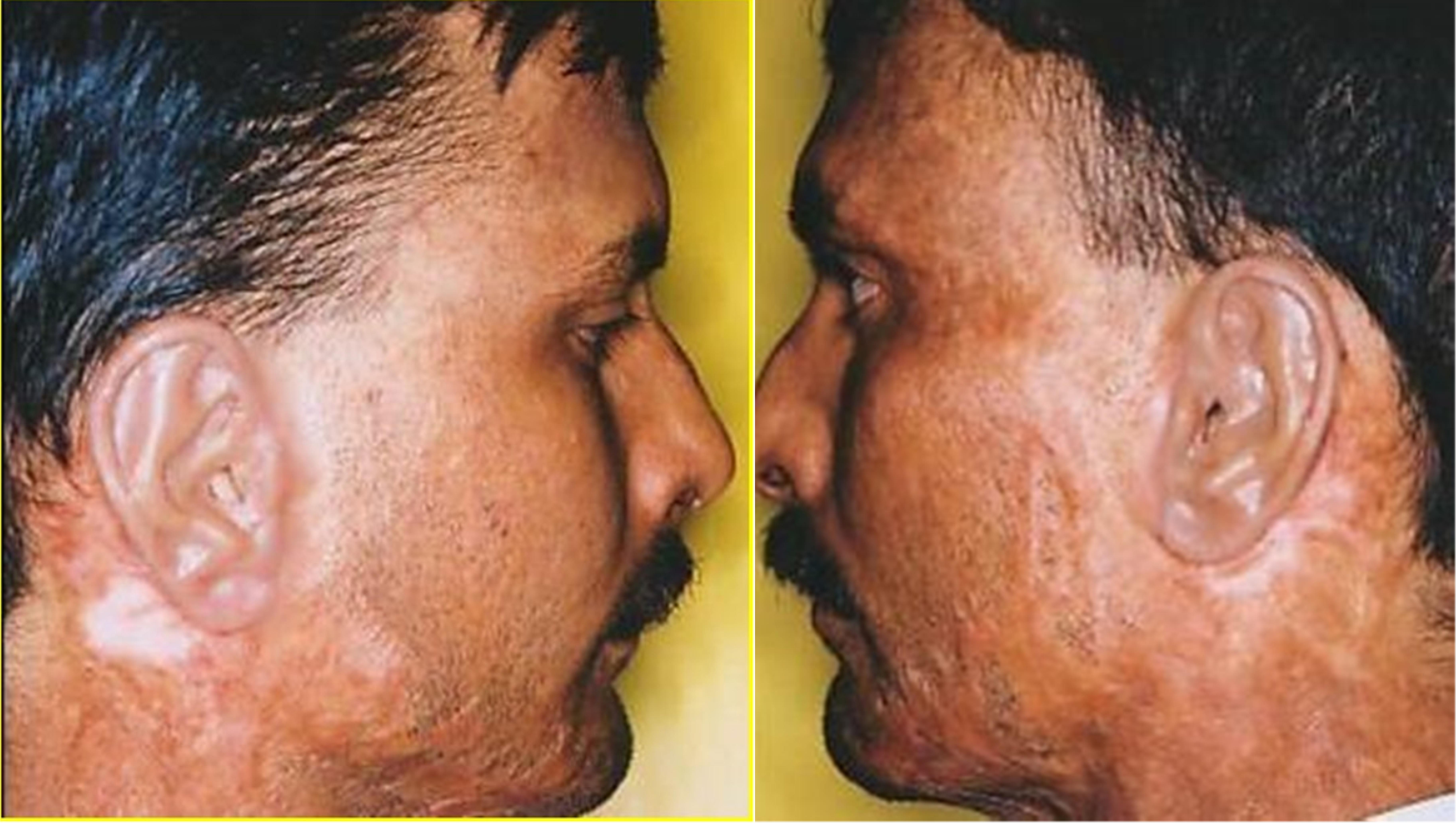 Role of Implants in Maxillofacial Prosthodontic