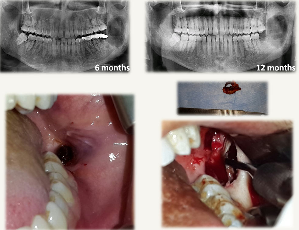 Treatment Approaches for Odontogenic Cysts of the Maxillary Sinus
