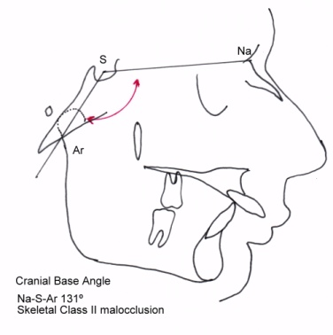 Class III High Angle Malocclusion Treated with Orthodontic