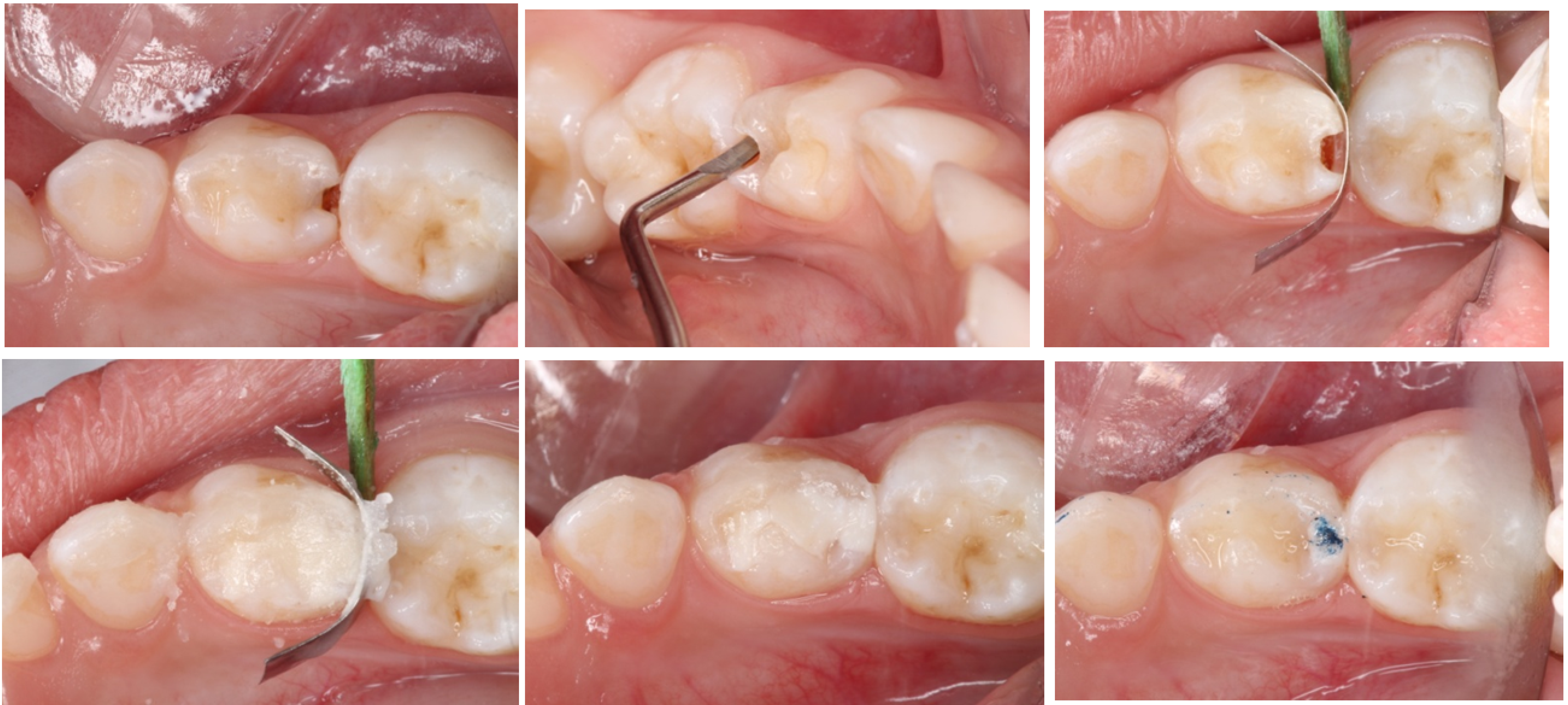 Are the Approximal Caries Lesions in Primary Teeth a