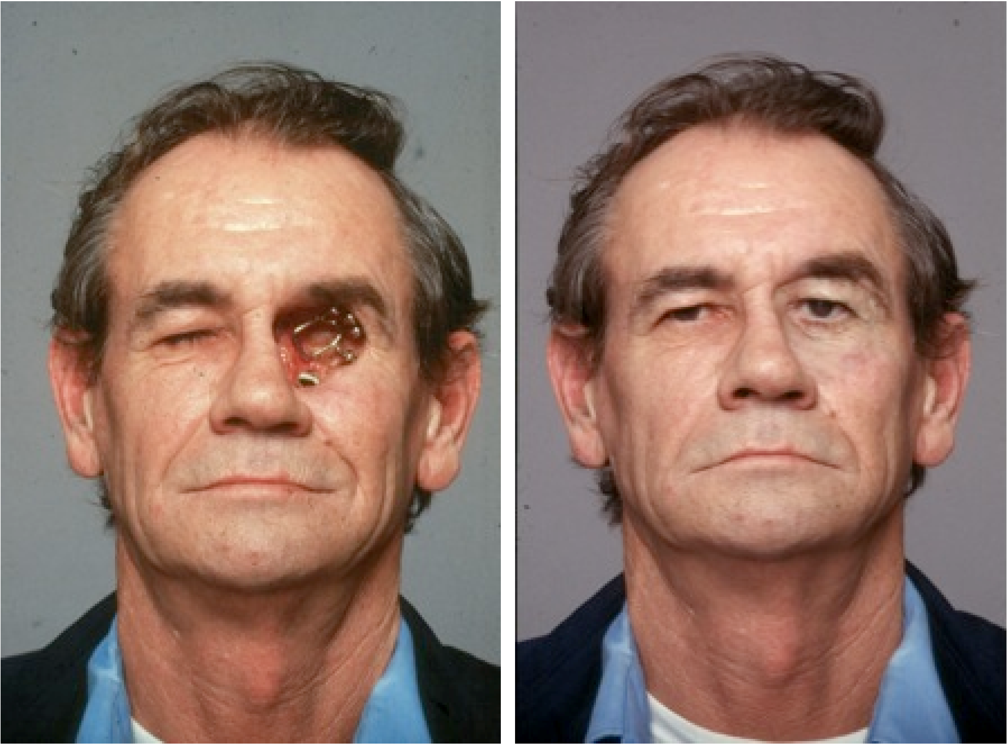 Reconstruction of the Face Following Cancer Ablation