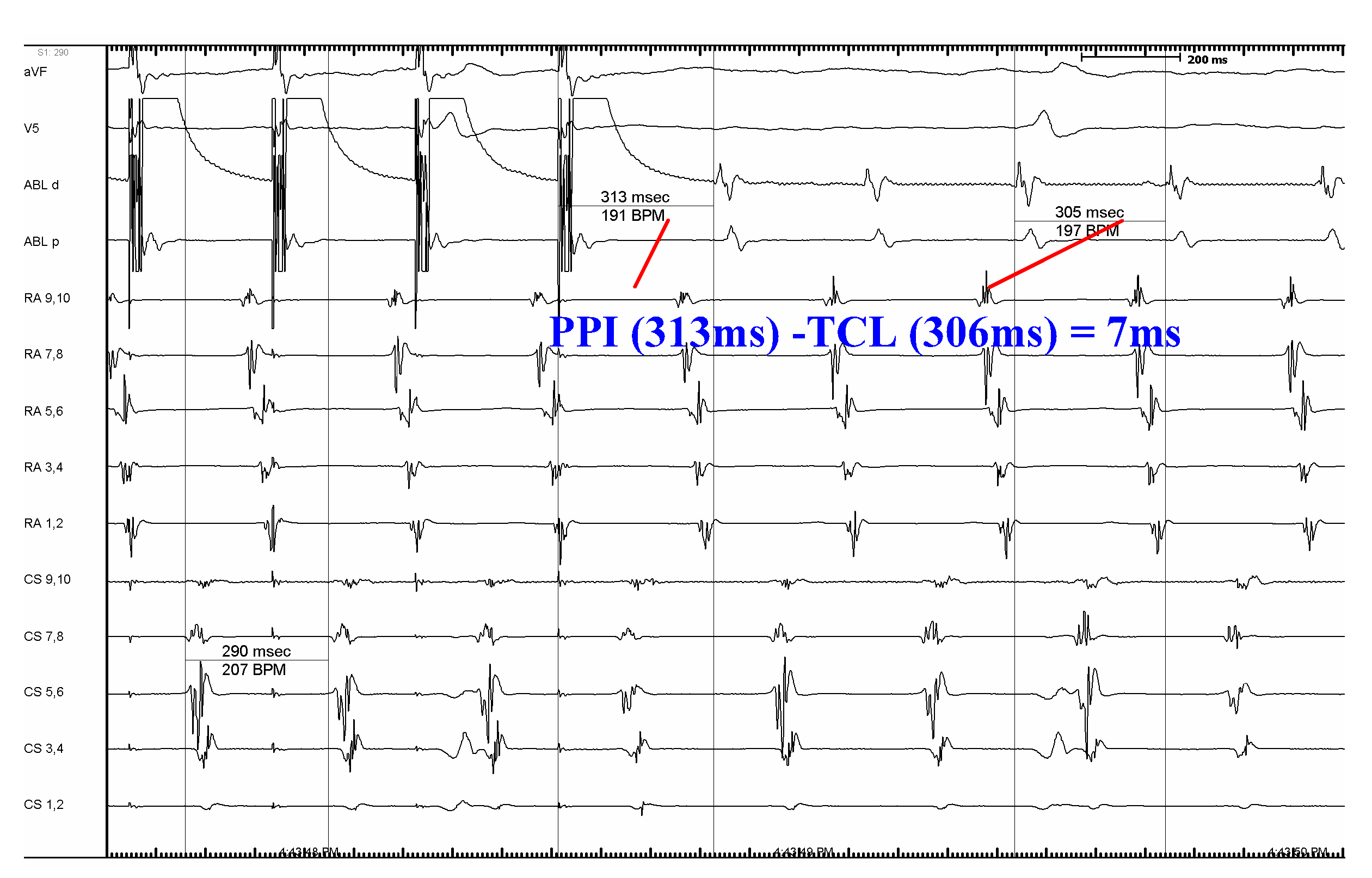 Atrial Flutter — Diagnosis, Management and Treatment