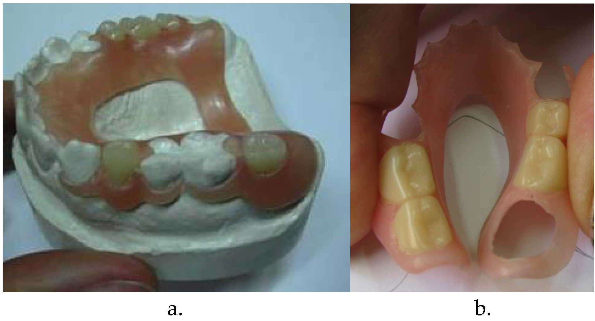 Thermoplastic Resins used in Dentistry | IntechOpen