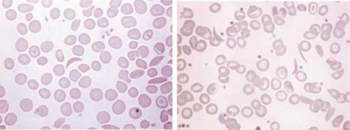 Sickle Cell Disease Scd Intechopen
