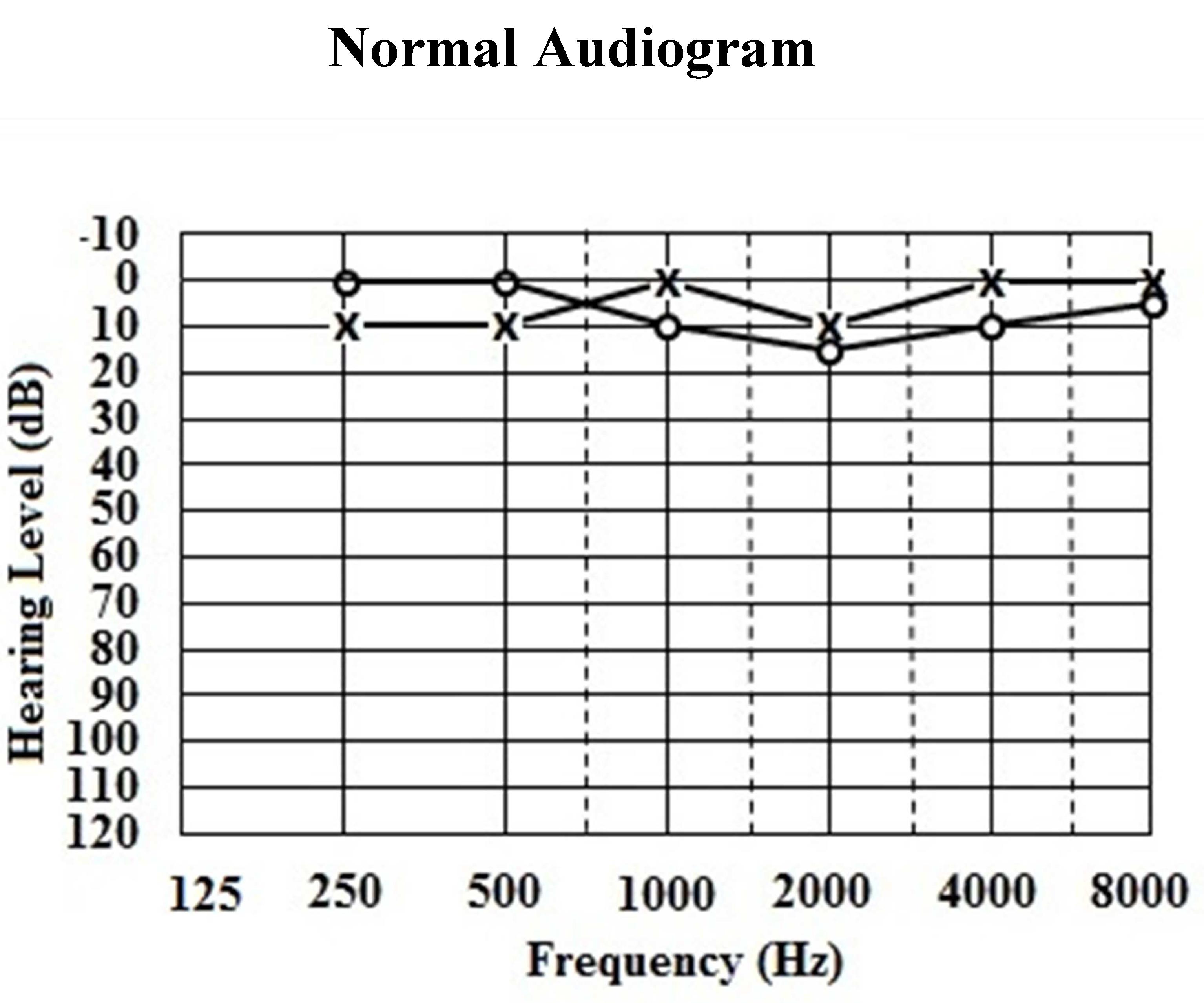 Classification of Hearing Loss | IntechOpen