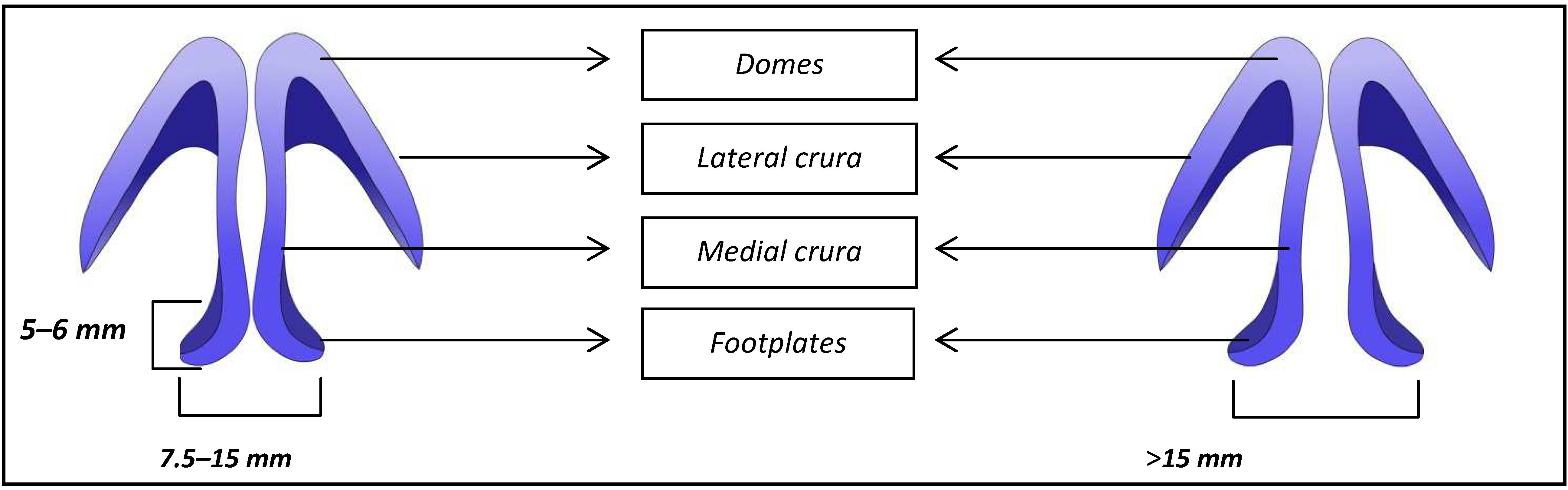 Sutures or Resection of the Protruding End of Medial Crura | IntechOpen
