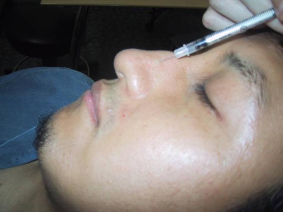 Botulinum Toxin in the Nasal Area | IntechOpen