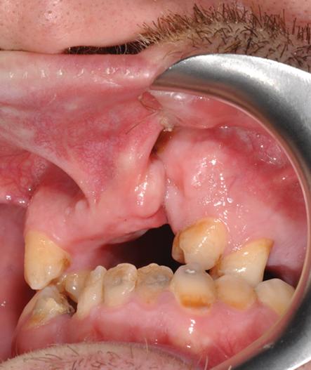 Treatment of Oral Fistulas | IntechOpen