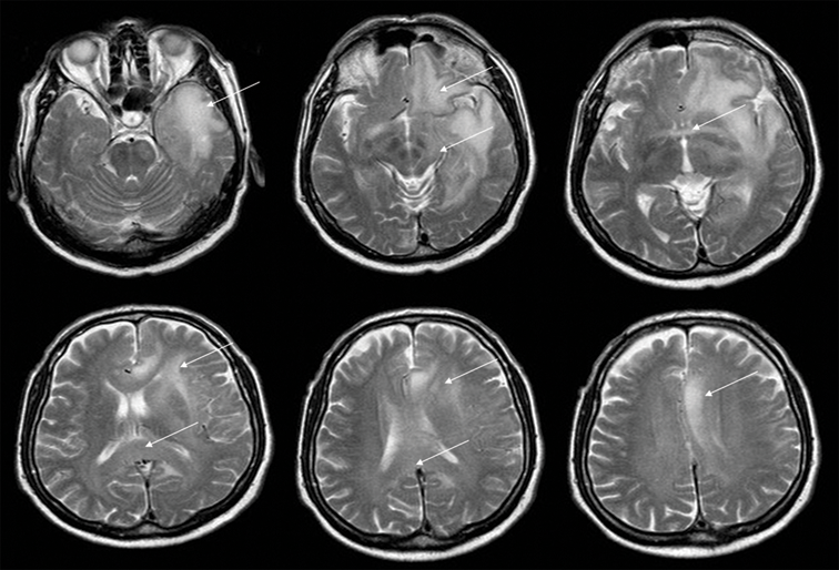 Advanced Mr Imaging Techniques In The Diagnosis Of Intraaxial Brain