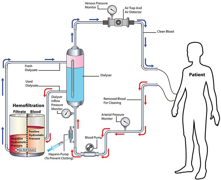 Effectiveness Of Ultrafiltration In Patients With
