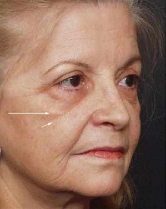Complications in Esthetic Surgery   IntechOpen