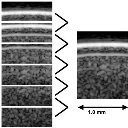 Applying High-Frequency Ultrasound to Examine Structures and