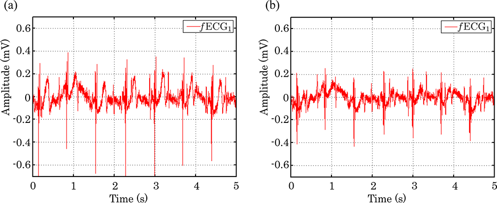 Nonlinear Adaptive Signal Processing Improves the Diagnostic Quality