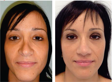 Management of Common Complications in Rhinoplasty and