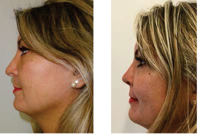 Management of Common Complications in Rhinoplasty and Medical