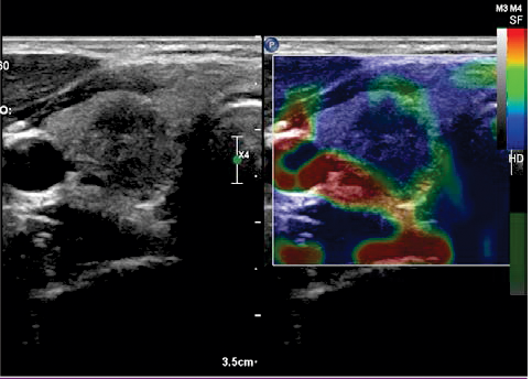 Elastography A New Ultrasound Technique In Nodular Thyroid
