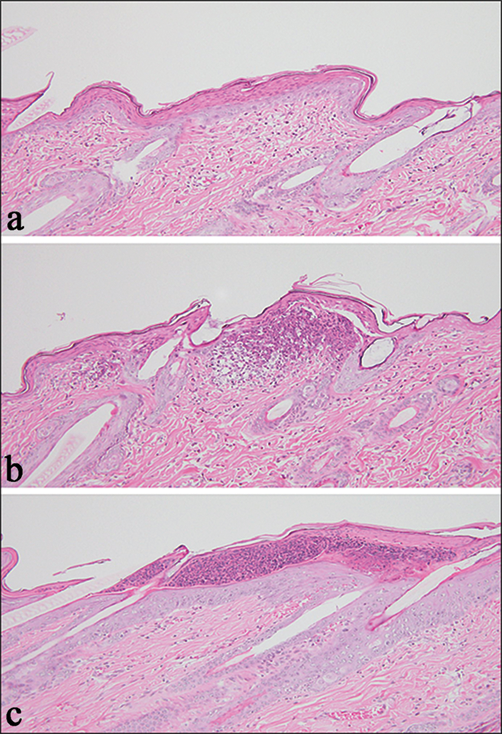 Drug-Induced Cutaneous Toxicity   IntechOpen