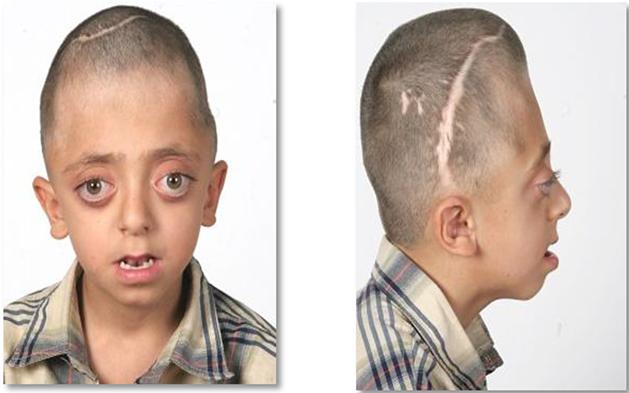 Advances in Craniofacial Surgery | IntechOpen