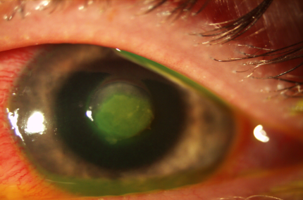 e4f167d7cd Acanthamoeba Keratitis  The Emerging Vision-Threatening Corneal ...