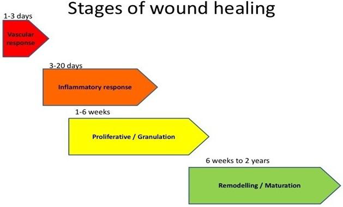 Surgical Management of Wounds | IntechOpen