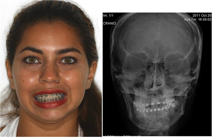 Reconstruction Of Tmj With Prosthesis Joint Intechopen