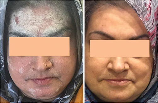 Common Skin Lesions of the Face | IntechOpen