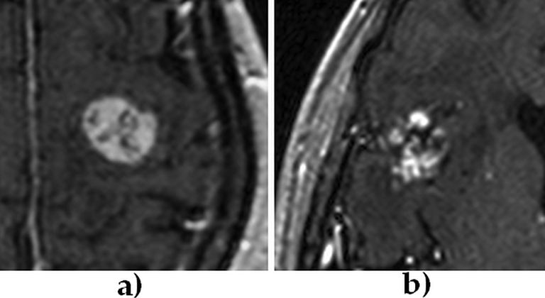 Texture Analysis in Magnetic Resonance Imaging: Review and