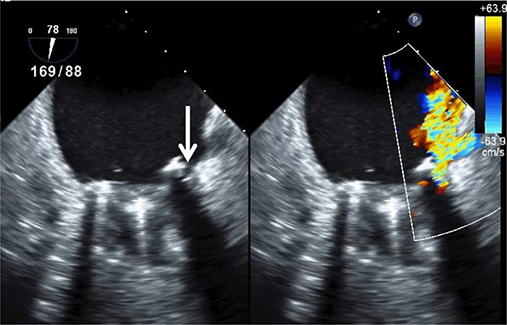 Advanced Echocardiography for the Diagnosis and Management