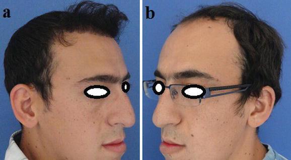 Follicular Unit Extraction (FUE) Hair Transplantation
