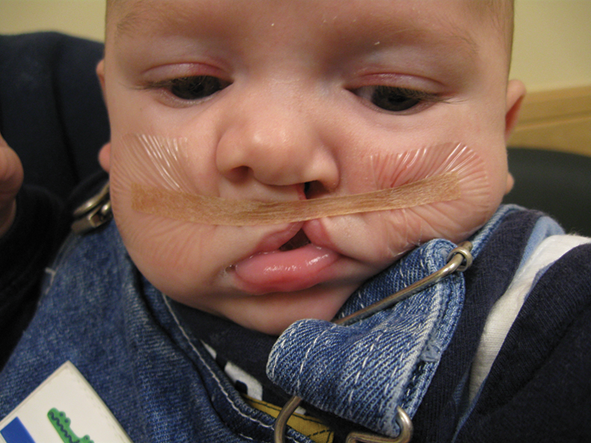 Surgical Techniques for Treatment of Unilateral Cleft Lip
