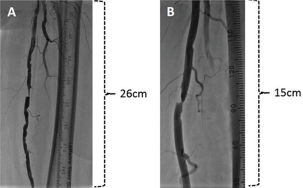 Basics Of Angiography For Peripheral Artery Disease Intechopen