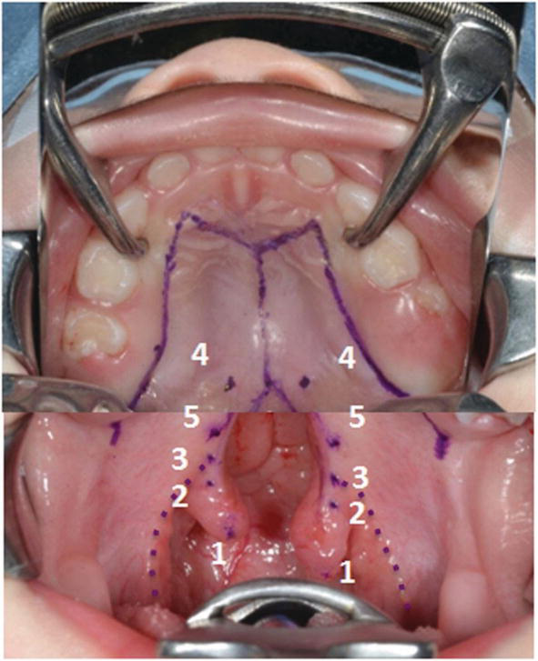 Surgical Strategy Of Cleft Palate Repair And Nasometric Results