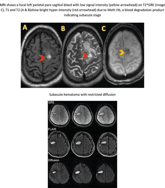 dating blood products on mri