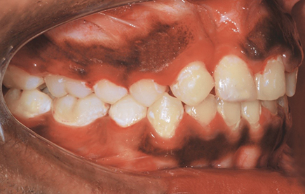 Cleft Lip and Palate Patients: Diagnosis and Treatment